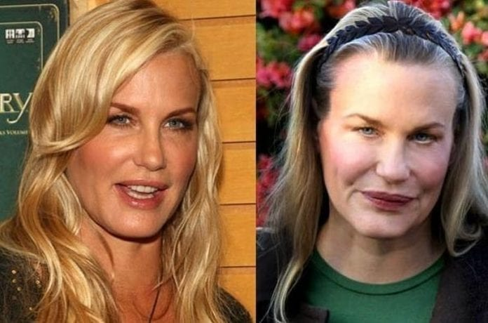 Daryl Hannah before and after plastic surgery
