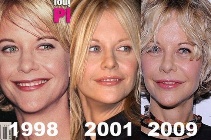 meg rayan plastic surgery