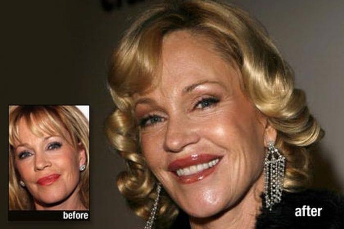 p celebrity plastic surgery melanie