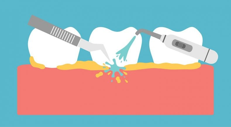 Cleaning Teeth 790x435